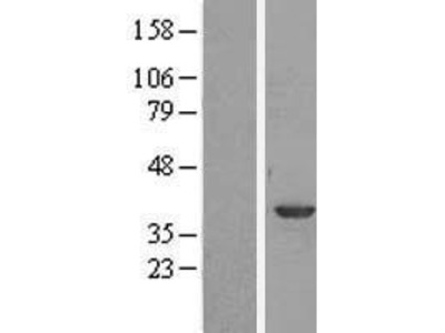 Transient overexpression lysate of annexin A1 (ANXA1)