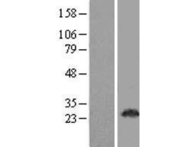 Transient overexpression lysate of chromosome 22 open reading frame 33 (C22orf33), transcript variant 2