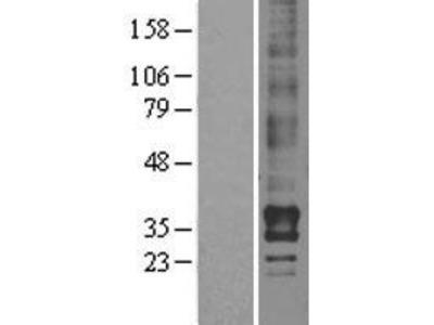 Transient overexpression lysate of lysophosphatidic acid receptor 2 (LPAR2)
