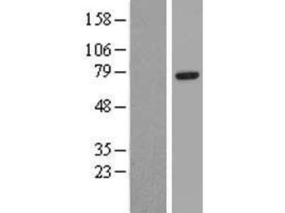 Transient overexpression lysate of eyes absent homolog 4 (Drosophila) (EYA4), transcript variant 2
