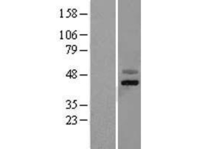 Transient overexpression lysate of F-box protein 4 (FBXO4), transcript variant 1