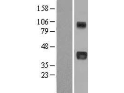Transient overexpression lysate of nephroblastoma overexpressed gene (NOV)