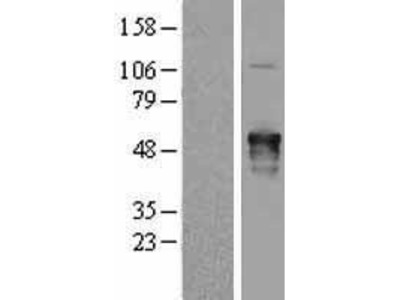 Transient overexpression lysate of A kinase (PRKA) anchor protein 5 (AKAP5)