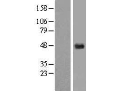Transient overexpression lysate of chromosome 5 open reading frame 15 (C5orf15)