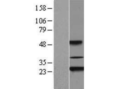 Transient overexpression lysate of akirin 2 (AKIRIN2)