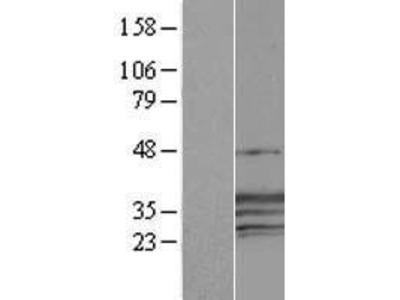 Transient overexpression lysate of cellular repressor of E1A-stimulated genes 1 (CREG1)