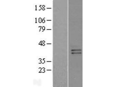 Transient overexpression lysate of G protein-coupled receptor, family C, group 5, member B (GPRC5B)