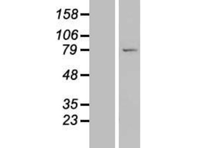 Transient overexpression lysate of leucine rich repeat containing 49 (LRRC49)