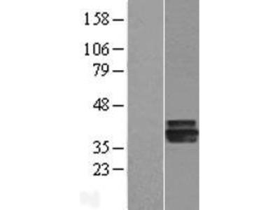 Transient overexpression lysate of agmatine ureohydrolase (agmatinase) (AGMAT)