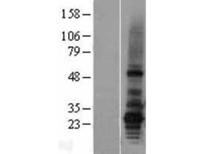 Transient overexpression lysate of 1-acylglycerol-3-phosphate O-acyltransferase 2 (lysophosphatidic acid acyltransferase, beta) (AGPAT2), transcript variant 1
