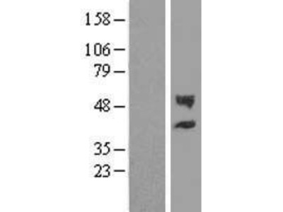 Transient overexpression lysate of carbohydrate (chondroitin 4) sulfotransferase 12 (CHST12)