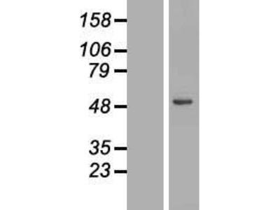 Transient overexpression lysate of lipase A, lysosomal acid, cholesterol esterase (LIPA), transcript variant 2