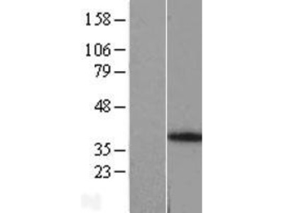 Transient overexpression lysate of ankyrin repeat, family A (RFXANK-like), 2 (ANKRA2)