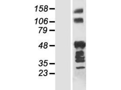 Transient overexpression lysate of ankyrin repeat domain 40 (ANKRD40)