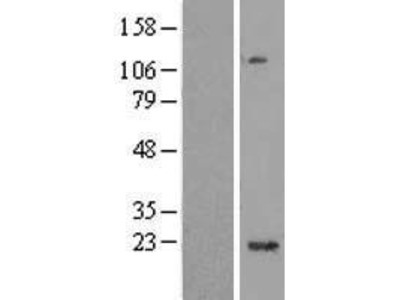 Transient overexpression lysate of chromosome 1 open reading frame 109 (C1orf109)