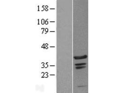 Transient overexpression lysate of chromosome 1 open reading frame 131 (C1orf131)