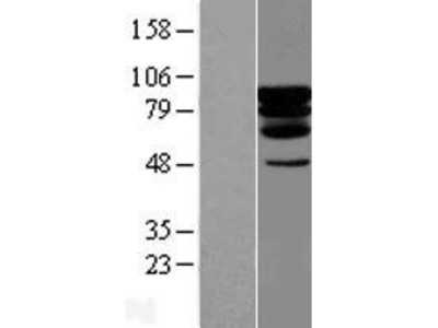 Transient overexpression lysate of PDX1 C-terminal inhibiting factor 1 (PCIF1)