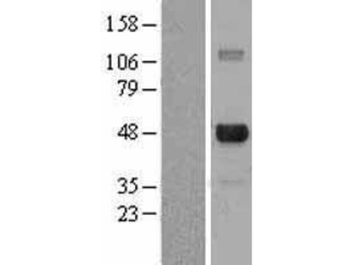 Transient overexpression lysate of E2F transcription factor 4, p107/p130-binding (E2F4)