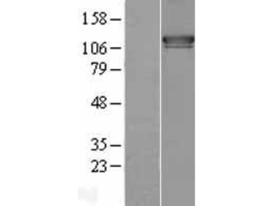 Transient overexpression lysate of extended synaptotagmin-like protein 1 (ESYT1)