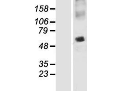 Transient overexpression lysate of synaptosomal-associated protein, 47kDa (SNAP47)