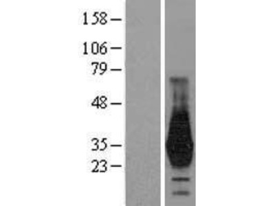 Transient overexpression lysate of homeobox D4 (HOXD4)