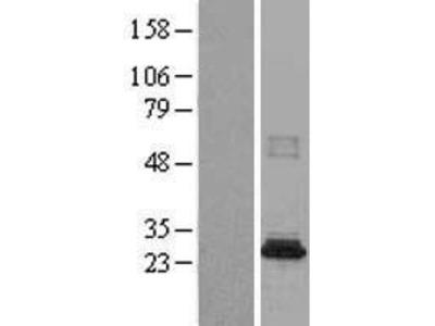 Transient overexpression lysate of N-acetyltransferase 8B (GCN5-related, putative, gene/pseudogene) (NAT8B)