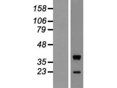 Transient overexpression lysate of v-mos Moloney murine sarcoma viral oncogene homolog (MOS)