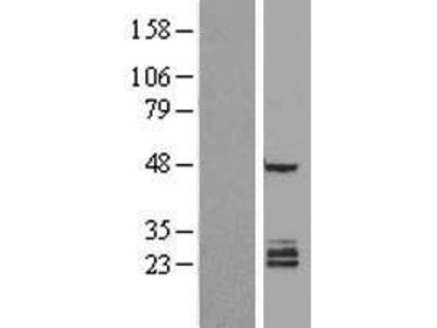Transient overexpression lysate of family with sequence similarity 3, member B (FAM3B), transcript variant 1