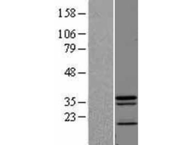 Transient overexpression lysate of JNK1/MAPK8-associated membrane protein (JKAMP), transcript variant 1
