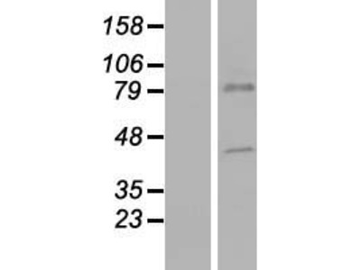 CTL5 (SLC44A5) (NM_152697) Human Over-expression Lysate