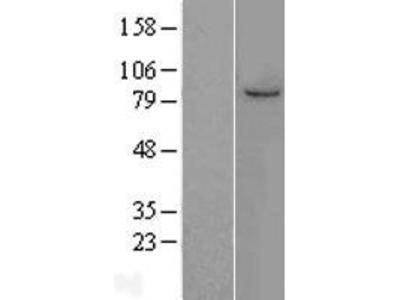 Transient overexpression lysate of minichromosome maintenance complex component 7 (MCM7), transcript variant 1