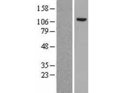 Transient overexpression lysate of mutS homolog 2, colon cancer, nonpolyposis type 1 (E. coli) (MSH2)