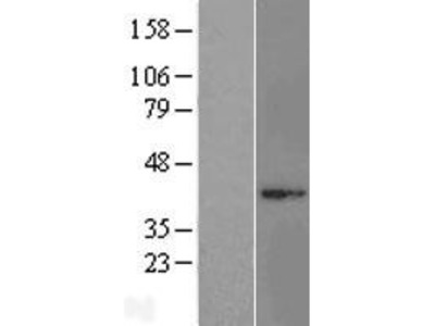 Transient overexpression lysate of mitochondrial ribosomal protein L3 (MRPL3), nuclear gene encoding mitochondrial protein