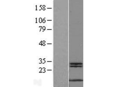 Transient overexpression lysate of c-myc binding protein (MYCBP)