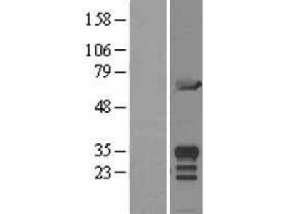 Transient overexpression lysate of MIF4G domain containing (MIF4GD)