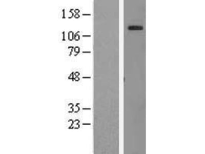 Transient overexpression lysate of myeloid/lymphoid or mixed-lineage leukemia (trithorax homolog, Drosophila); translocated to, 10 (MLLT10), transcript variant 1