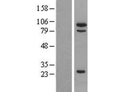 Transient overexpression lysate of mutS homolog 5 (E. coli) (MSH5), transcript variant 3