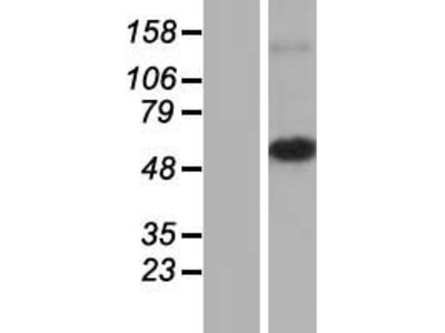 Transient overexpression lysate of mitochondrial ribosomal protein S30 (MRPS30), nuclear gene encoding mitochondrial protein