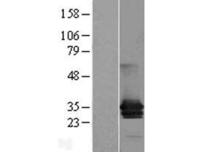 Transient overexpression lysate of myelin protein zero-like 1 (MPZL1), transcript variant 1
