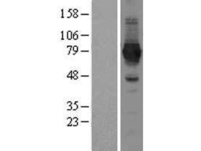 Transient overexpression lysate of NAD synthetase 1 (NADSYN1)