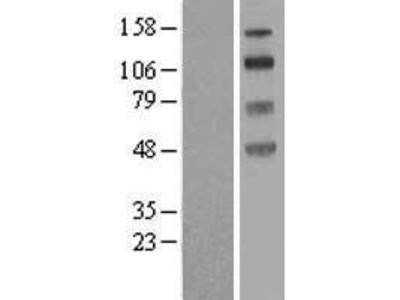 SLC9A8 (NM_015266) Human Over-expression Lysate