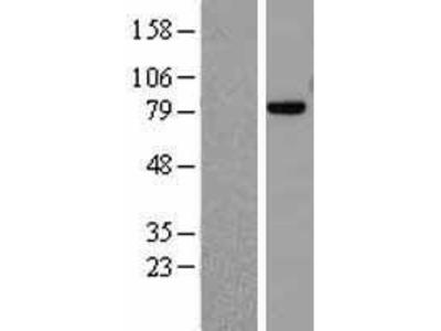 Transient overexpression lysate of MRE11 meiotic recombination 11 homolog A (S. cerevisiae) (MRE11A), transcript variant 1
