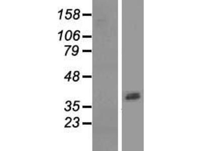Transient overexpression lysate of aspartic peptidase, retroviral-like 1 (ASPRV1)