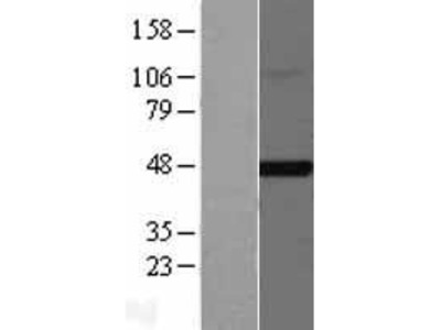 Transient overexpression lysate of farnesyltransferase, CAAX box, beta (FNTB)
