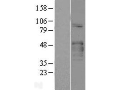 Transient overexpression lysate of collagen-like tail subunit (single strand of homotrimer) of asymmetric acetylcholinesterase (COLQ), transcript variant I