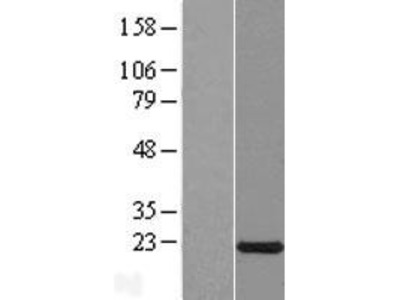 Transient overexpression lysate of chromosome X open reading frame 40A (CXorf40A), transcript variant 1