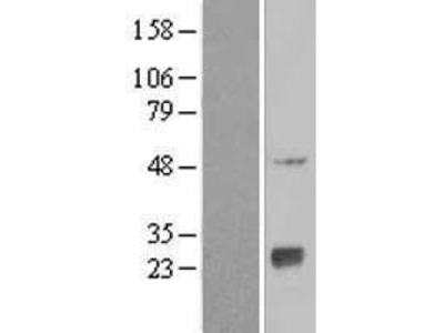 Transient overexpression lysate of N-acetyltransferase 9 (GCN5-related, putative) (NAT9)