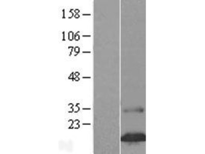 Transient overexpression lysate of family with sequence similarity 24, member B (FAM24B)