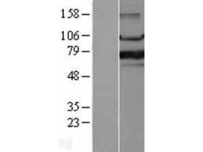 Transient overexpression lysate of forkhead box P1 (FOXP1), transcript variant 1