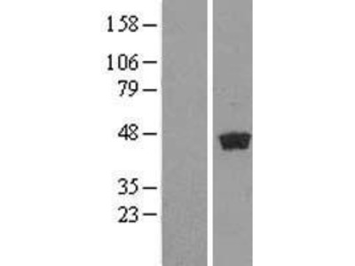 Transient overexpression lysate of ganglioside-induced differentiation-associated protein 1-like 1 (GDAP1L1)